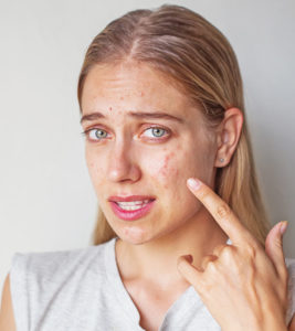 Illustration of Is Stress / Many Thoughts Can Cause Acne?