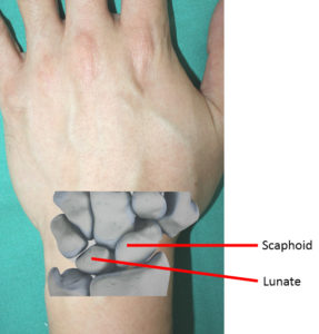 Illustration of The Cause Of Pain In The Wrist Area Precisely In The Thumb?
