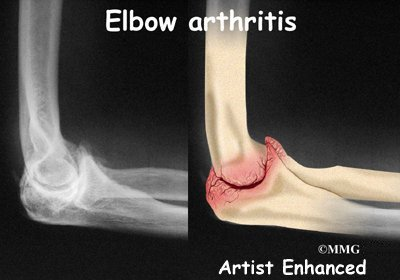 Illustration of How Do You Deal With Arthritis Of The Elbow?