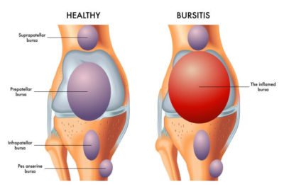 Illustration of The Cause Is Often Pain In The Ankles, Knees, Elbows, And Wrists?