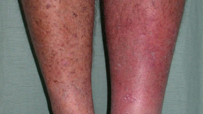 Illustration of The Right Knee Hurts With A Red And Itchy Rash?