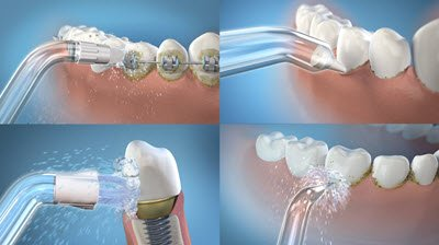 Illustration of Can Water And Water Floss Replace The Dental Floss Function?