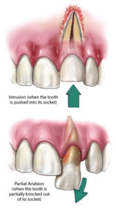 Illustration of Tooth Dislodged 2 Times, How To Grow Again?