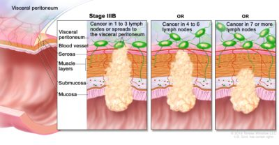 Illustration of How To Deal With Stage 3 Colon Cancer?