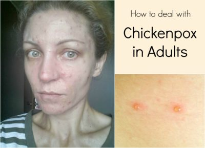 Illustration of Chicken Pox Is Suitable To Use Foamy Or Non-foaming Soap?