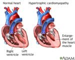 Palpitations And Neck Stiffness In Patients With Thickening Of The Heart Muscle?
