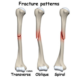 Illustration of Recovery Period Of Left Arm Fracture Without Surgery?