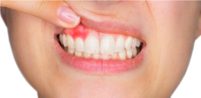Illustration of The Cause Of Pus Is Gathering In The Gums?