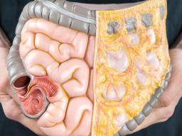 Illustration of The Stomach Still Feels Bloated And Cannot Defecate After Ileus Surgery?