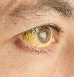 Illustration of The Eyes Release Yellow Fluid Almost Every Day?