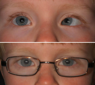 Illustration of Twitching Of The Eye Minus When Not Wearing Glasses?