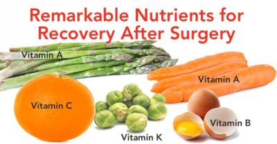 Illustration of Foods That Should Not Be Consumed After Surgery To Remove The Thyroid Gland?
