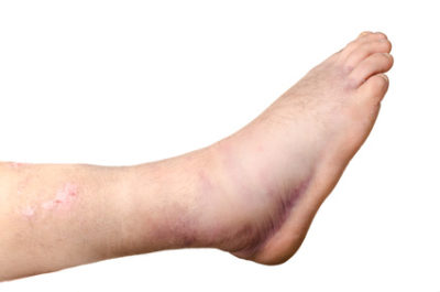 Illustration of The Right Leg Is Swollen After A Fracture Surgery?