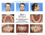 Braces After Tooth Extraction?