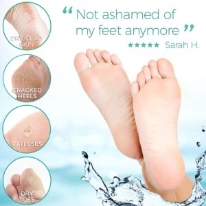 Illustration of The Skin Of Your Feet That Is Easily Scratched And Peeled Off?