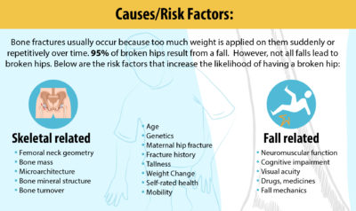 Illustration of Management Of Hip Fractures Due To Falls In The Elderly?