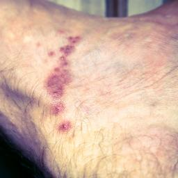 Illustration of Causes Itching Around The Groin, Black Rashes, Runny, And Sore.?