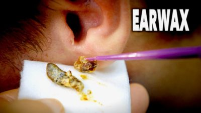 Illustration of A Good Way To Clean Earwax?