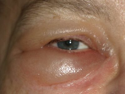 Illustration of The Cause Of Swollen Eyes After Surgery?