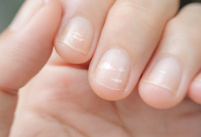 Illustration of Itching Around The Nails Causing White Spots?
