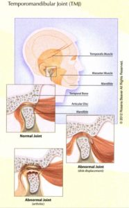 Illustration of Jaw Dislocation To Nerve Damage In The Tongue?