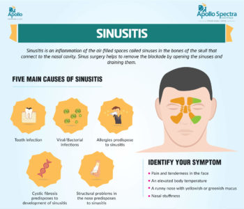 Illustration of Treatment For Sinusitis Other Than Surgery?
