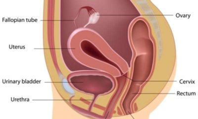 Illustration of Emergence Of Phlegm Like Vaginal Discharge In The Urinary Hole?