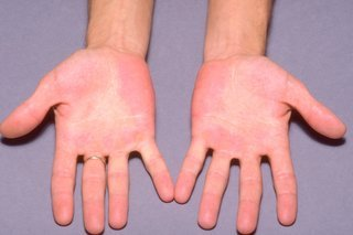 Illustration of Itching In The Palm Of The Hand To Swelling In Children Aged 1 Year?
