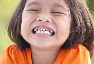 Illustration of The Front Tooth Of An 11-year-old Boy Is Broken?
