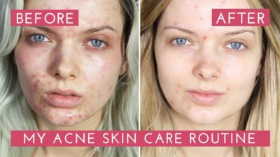 Illustration of The Appearance Of Acne After The Use Of Skin Care Products?