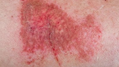Illustration of The Skin Feels Sore When There Is Friction But There Are No Injuries At All?