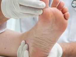 Illustration of Pain In The Sole Of The Foot And Dry Skin Cracked?