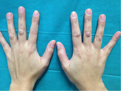 Illustration of Lumps Such As Quotes Or Flesh Grow On The Fingers?
