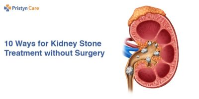 Illustration of Treatment Other Than Surgery On Kidney Stones?