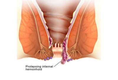 Illustration of How To Deal With Hemorrhoids That Are Starting To Enlarge?