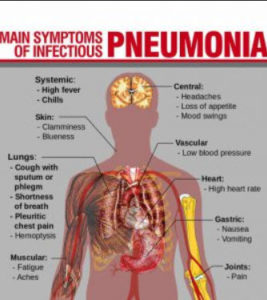 Illustration of A Cough That Doesn't Go Away In People With Pneumonia?
