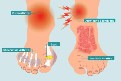 Illustration of Pain Around The Spreading Heel And Swollen Foot?