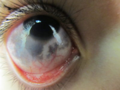 Illustration of Blackish-colored Blotches On The Whites Of The Baby's Eyes (sclera)?
