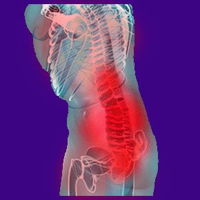 Illustration of The Cause Of Fever Is Accompanied By Back Pain And Brown Lumps In The Breast?