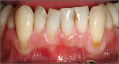 Illustration of Swollen And Raised Gums?