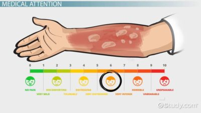 Illustration of How To Deal With Burns Caused By Scalding?