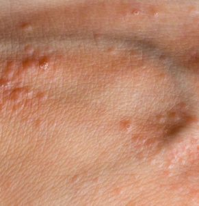 Illustration of Bumps On The Skin Of The Hands, Festering, Sore And Hot?