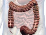 Right Abdominal Pain When Pressed, A Sign Of Appendicitis Recurrence?