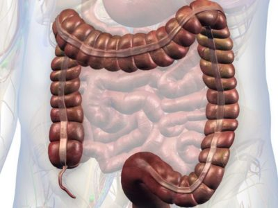 Illustration of Right Abdominal Pain When Pressed, A Sign Of Appendicitis Recurrence?
