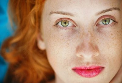 Illustration of Causes And Treatment Of Freckles On Almost The Entire Face?
