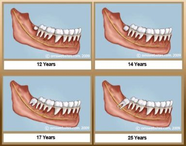 Illustration of Molars Grow At The Age Of 17 Years. Including Wisdom Teeth?