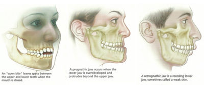 Illustration of Overcoming Teeth In The Upper And Lower Jaw That Can Not Meet?