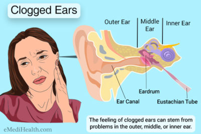 Illustration of Causes And Solutions To Overcome Blocked Ears?