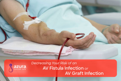 Illustration of Causes Of Infection In Av Shunt Kidney Failure Patients?
