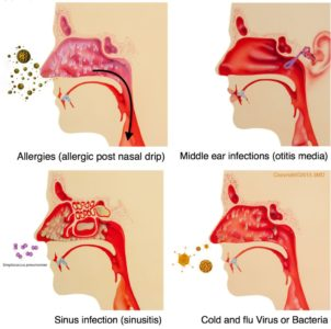 Illustration of Complaints Of Nasal Congestion, Nasal Mucus And Coughing?